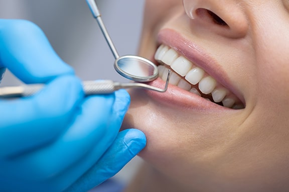 Periodontal treatments in Costa Rica