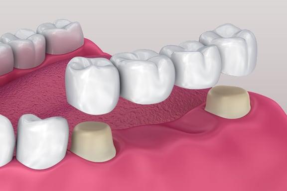 Three types of dental bridges
