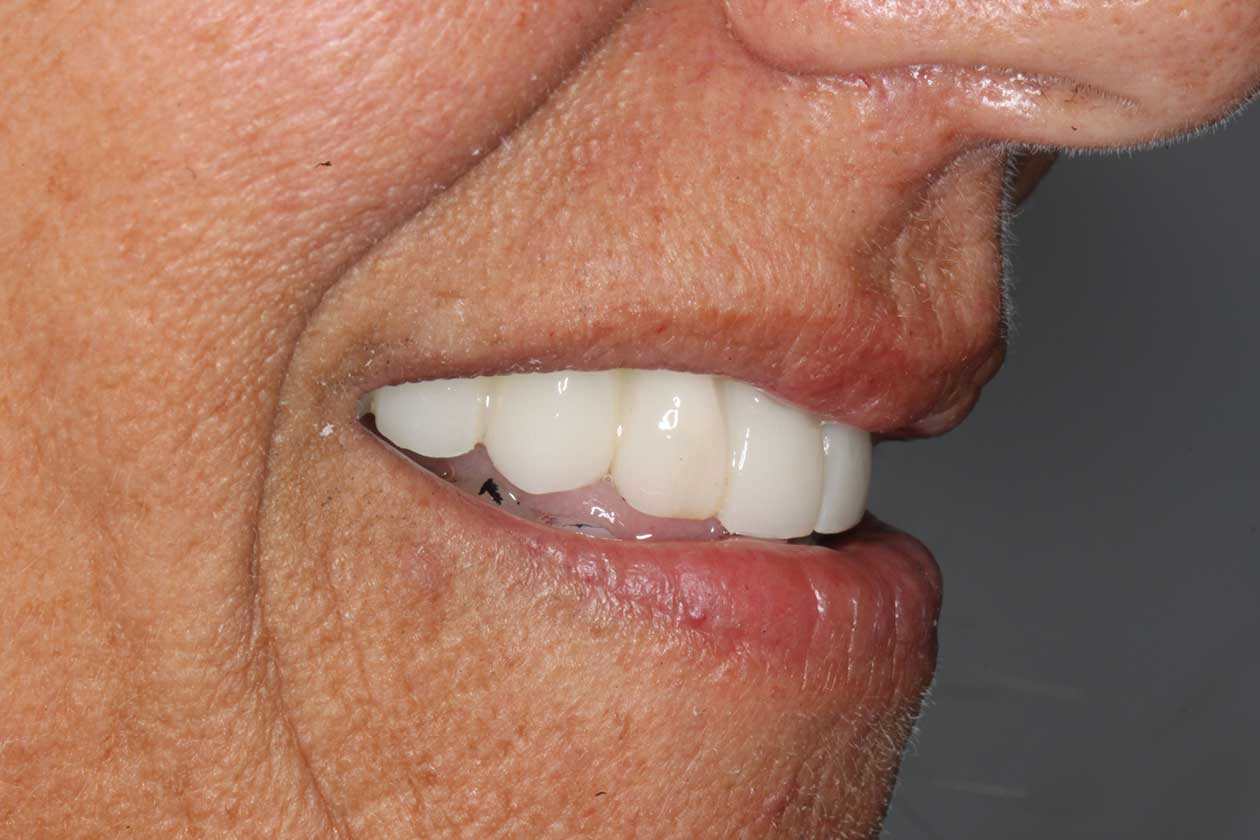 What to consider when choosing a dental crown in Costa Rica