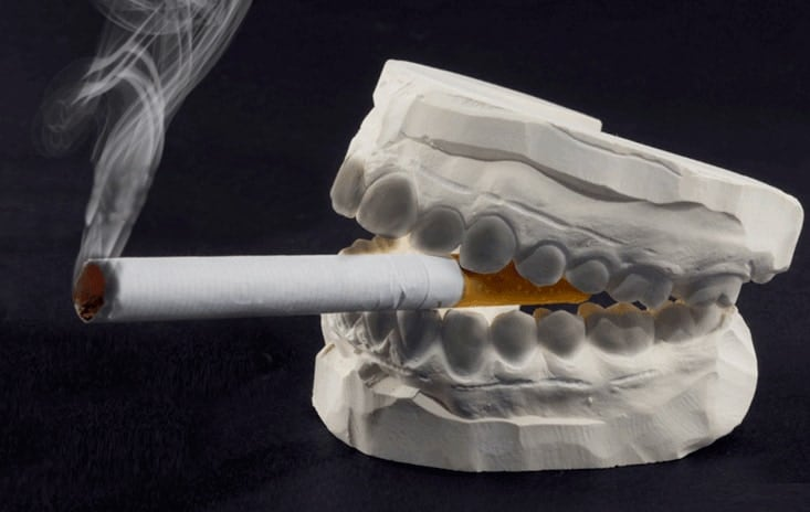 Heavy smokers and drinkers are at higher risk of oral cancers.