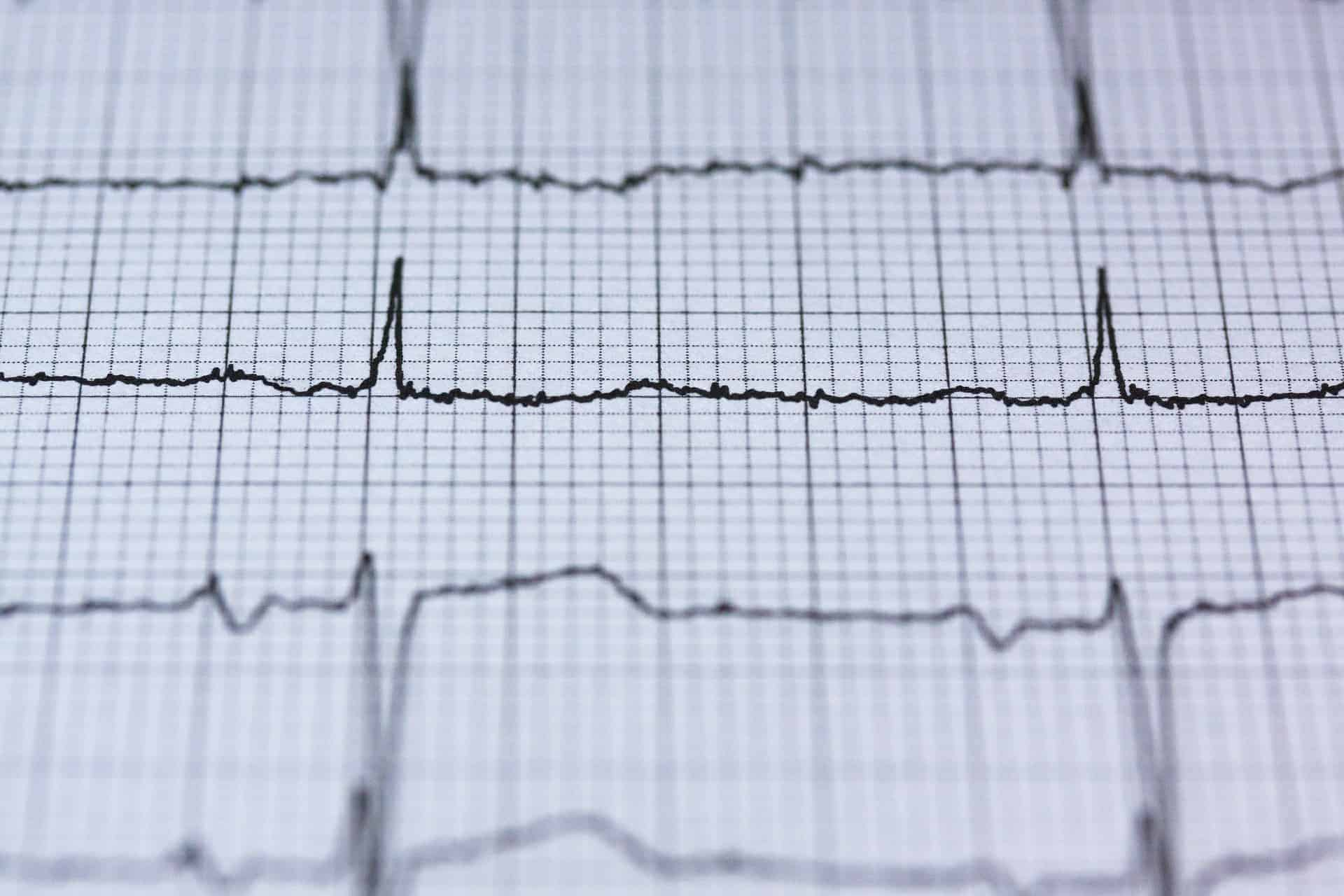 Echocardiogram results